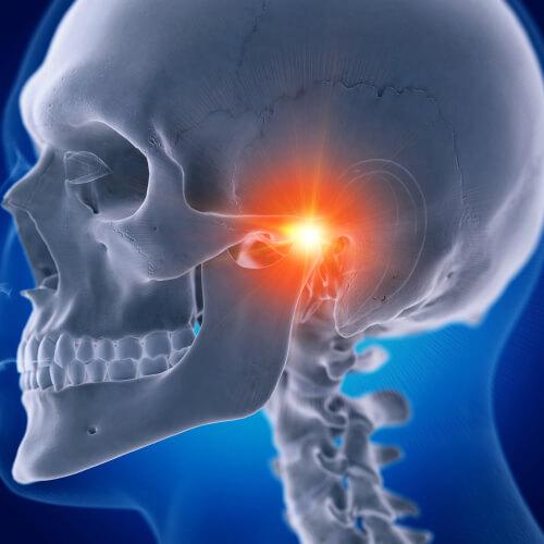 temporomandibulaire dysfunctie